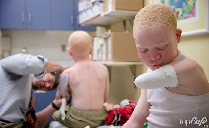 альбинос. Почему люди хранят части человеческих тел