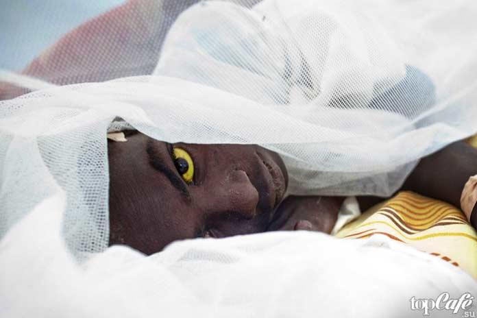 Самые опасные комары: Желта лихорадка