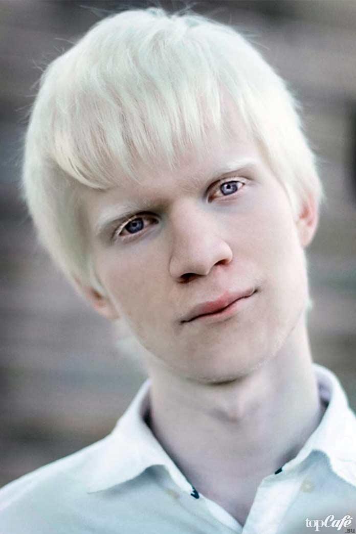 Люди альбиносы: Amal Sofi