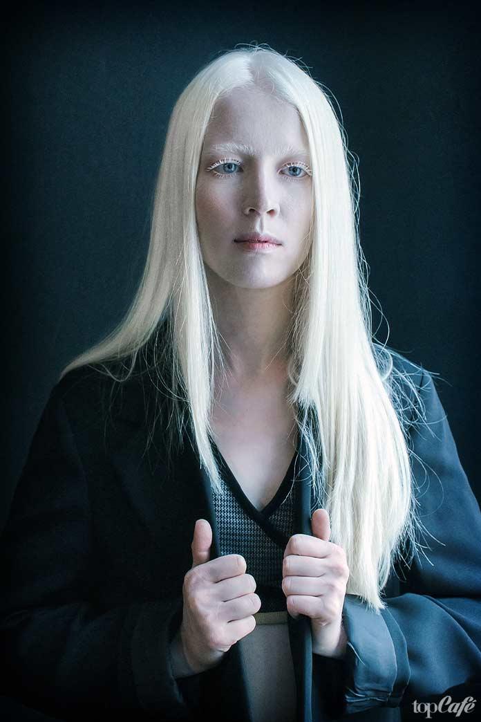 Люди альбиносы: Dessyslava