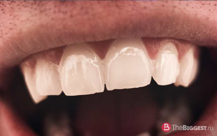 Самые необычные обряды и ритуалы мира: Подпиливание зубов