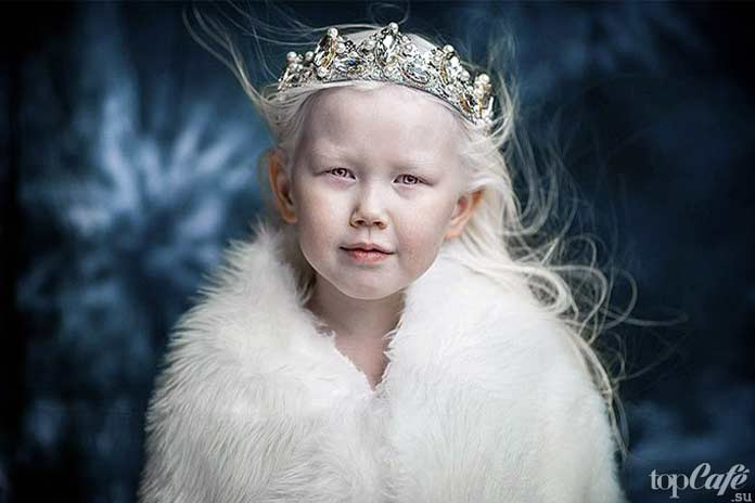 Люди альбиносы: девочка из Якутии