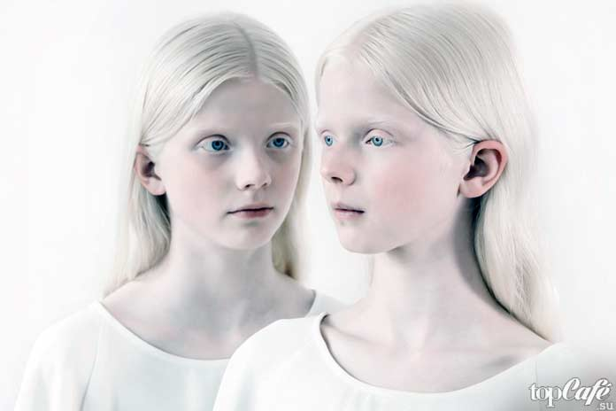 Люди альбиносы: люди альдиносы