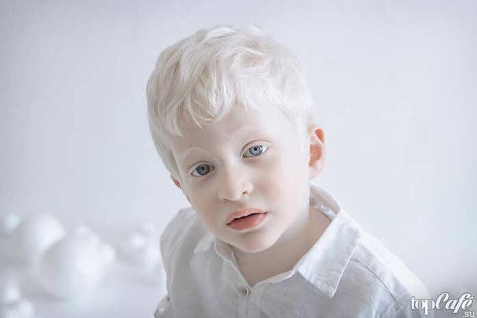 Люди альбиносы: мальчик