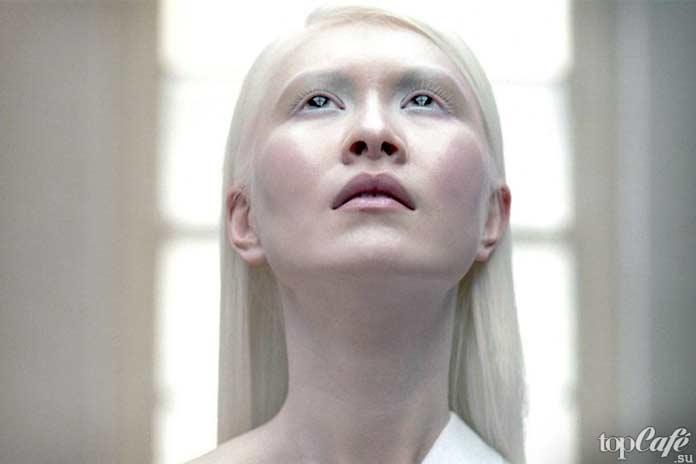 Люди альбиносы: Connie Chiu