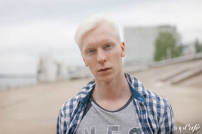 Люди альбиносы в обычной жизни