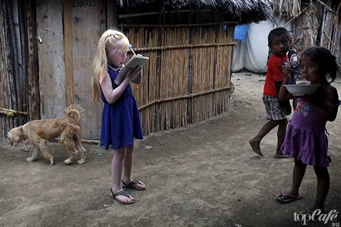 Люди альбиносы: жители Панамы