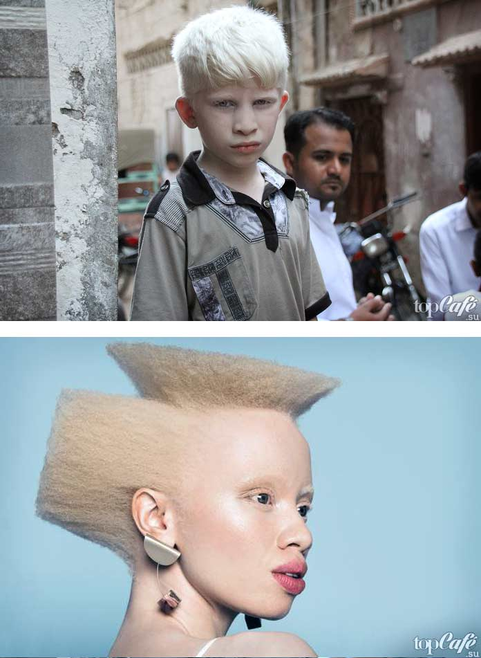 Фотографии людей альбиносов
