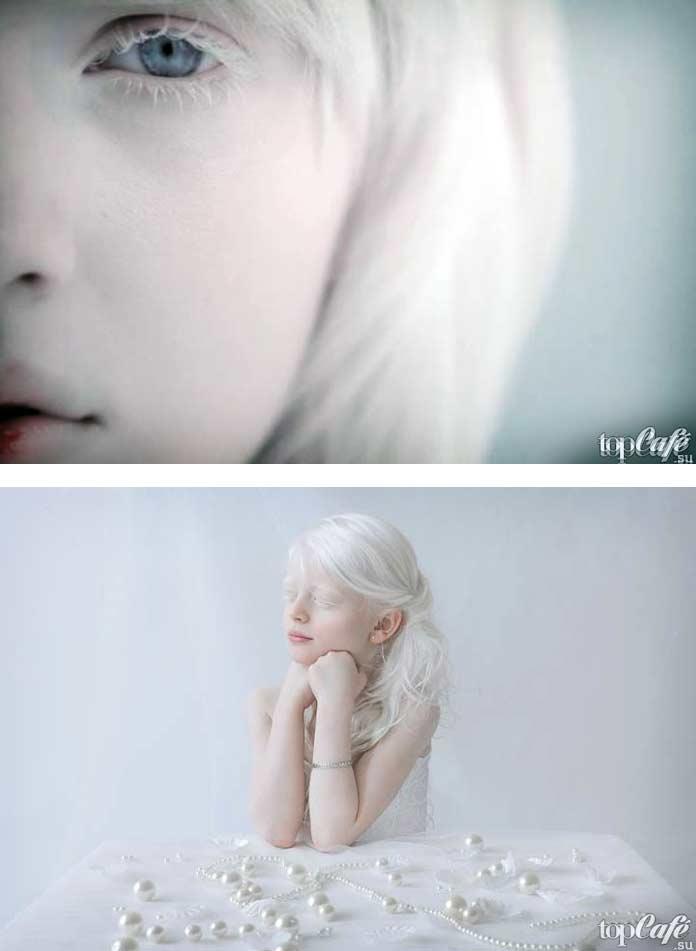 Фото людей альбиносов