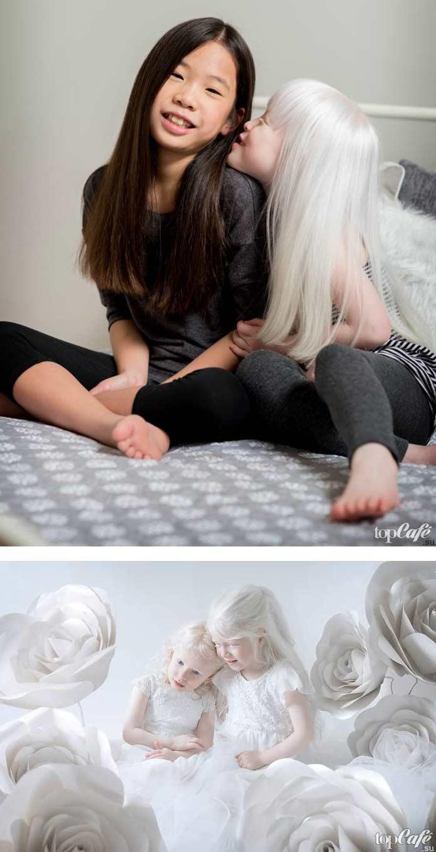 Люди альбиносы на фото