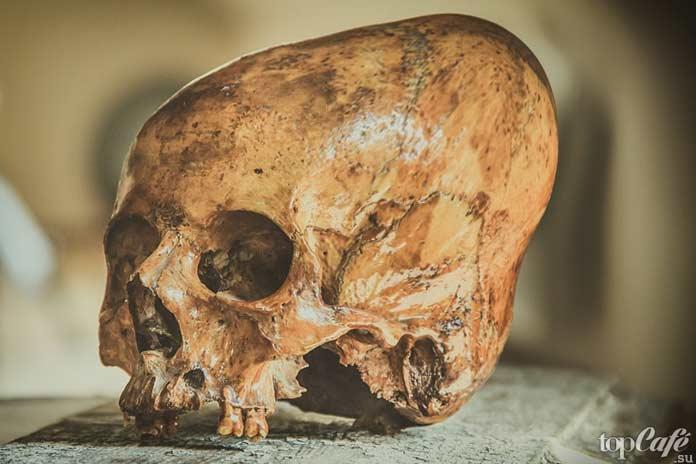 Факты об инках: Деформация черепа. CC0