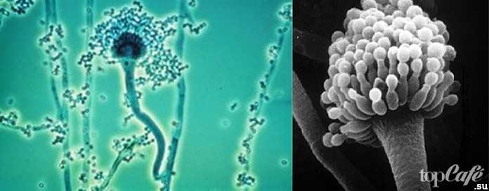 Самые опасные болезни, вызываемые бактериями: Aspergillus fumigatus. CC0