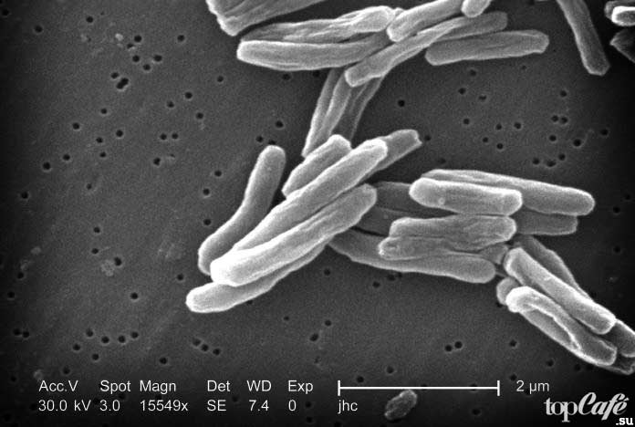 Mycobacterium tuberculosis. CC0