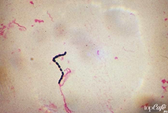 Самые опасные болезни, вызываемые бактериями: Streptococcus. CC0